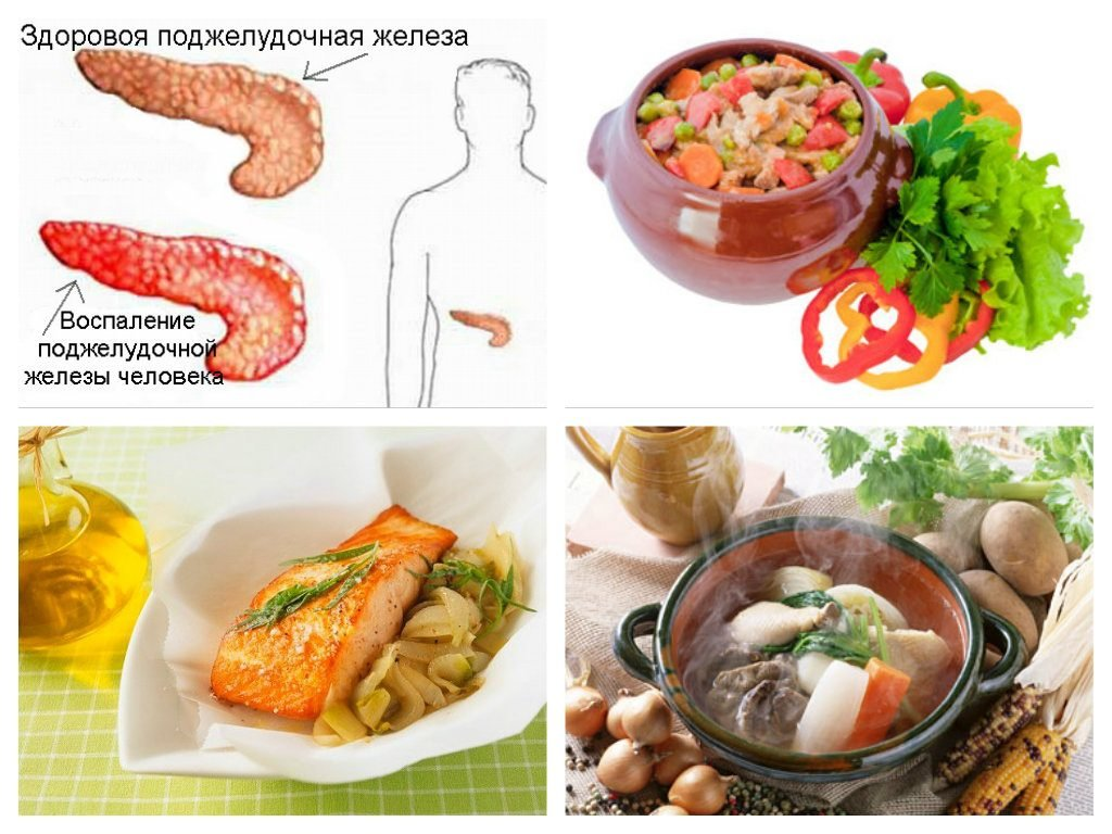 Воспаление поджелудочной железы – панкреатит