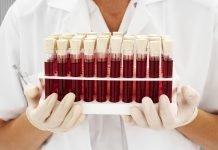 Диета для 3 группы крови: положительной, отрицательной