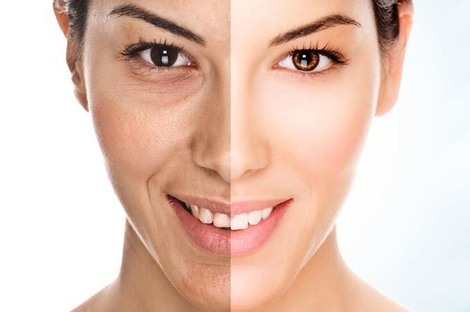 Как добиться красивой кожи лица в домашних условиях — подбор диеты.
