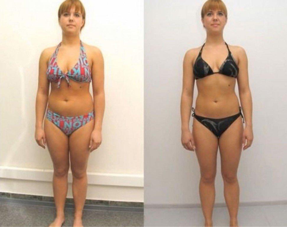 как похудеть при гиперандрогении тех, кто